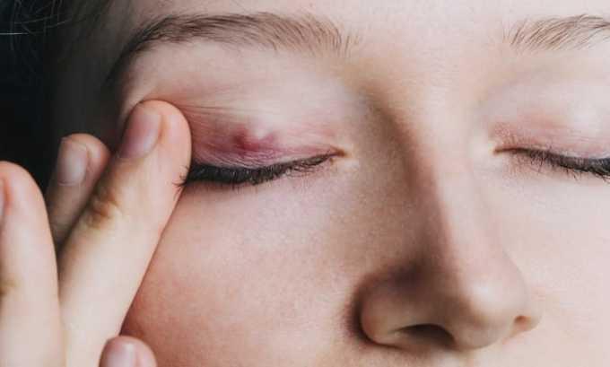 Применение глазной мази показано при блефарите