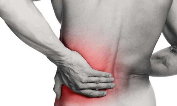 Нурофен Экспресс назначают при невралгии и миалгии
