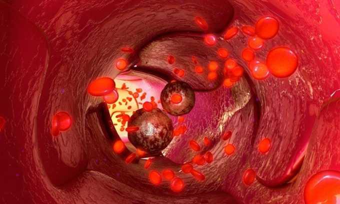 Препарат противопоказан при заболеваниях крови