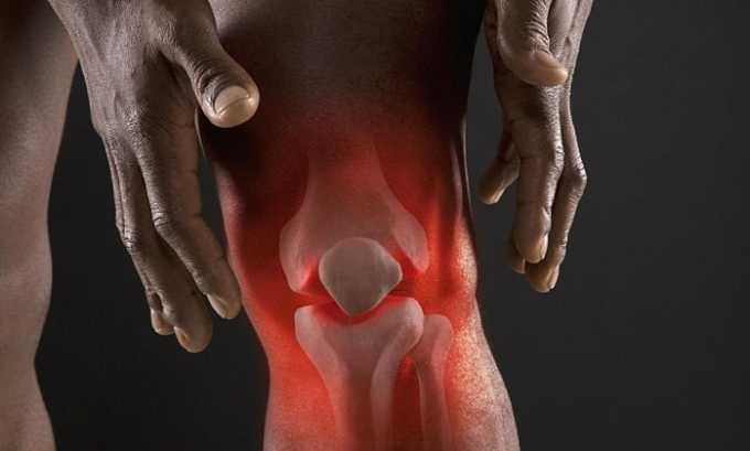 При воспалении суставов часто пациентам назначается Нимесулид