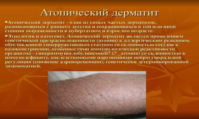 Гормон необходим для терапии атопического дерматита