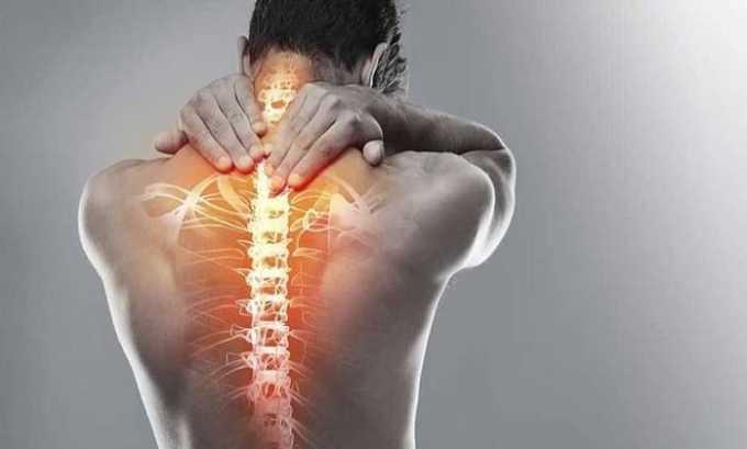 Одновременный прием медикаментов показан при остеохондрозе