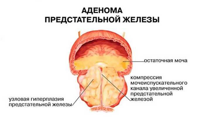 Аденома или рак простаты - главная причина выделения остатков урины у мужчин