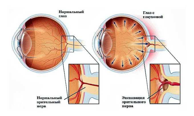 Лекарственное средство не применяется при глаукоме в активной стадии