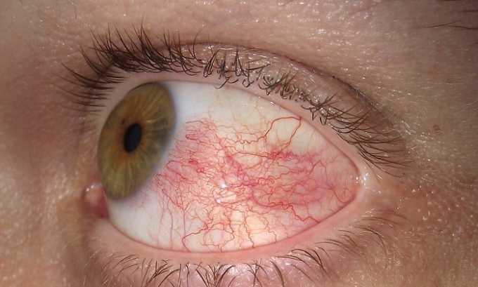 Эуфиллин противопоказан при кровоизлиянии в глазное яблоко