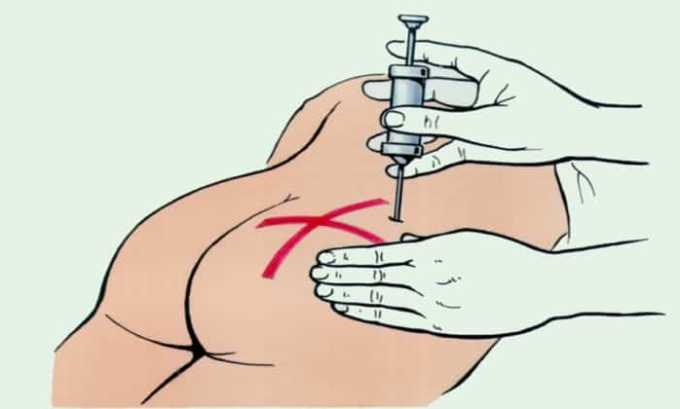 Инъекции можно вводить внутримышечно (глубоко в ягодичную мышцу) и в полость сустава