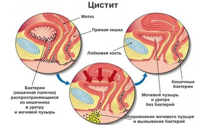 У женщин аллергическая форма цистита отмечается чаще (из-за особенностей анатомического строения мочевыводящей системы)