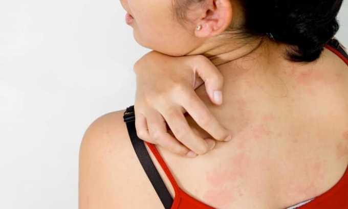 Лекарственное средство не рекомендуется назначать пациентам, имеющим аллергию на компоненты препарата