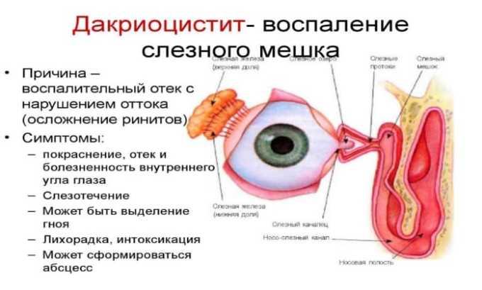 Препарат используется для лечения хронического бактериального дакриоцистита