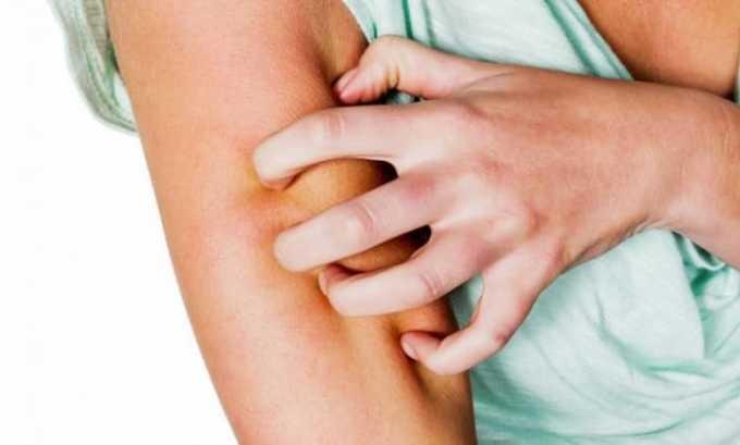 Препарат может вызвать побочное явление в виде зуда и высыпания