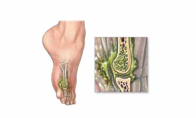 Препарат используется при остром остеомиелите