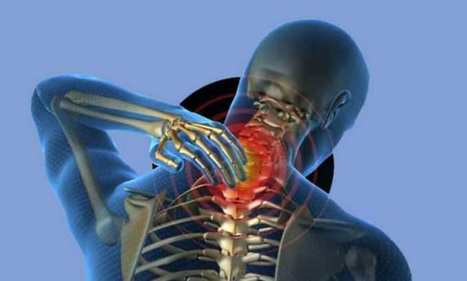 Вольтарен показан при остеохондрозе