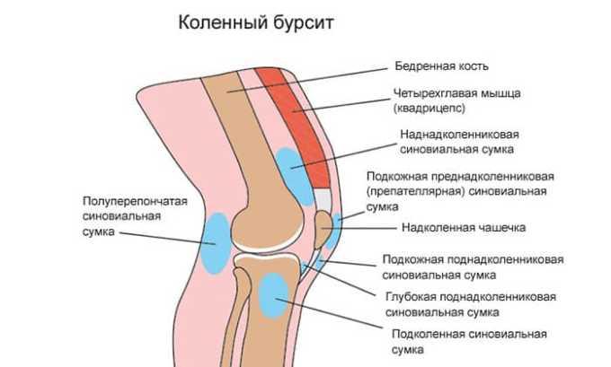 МП используется в целях снятия симптомов при бурсите
