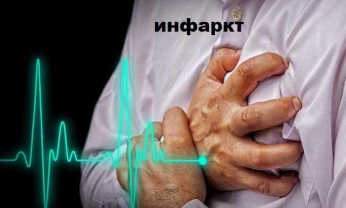 Хартил Д показан к применению после перенесенного инфаркта миокарда