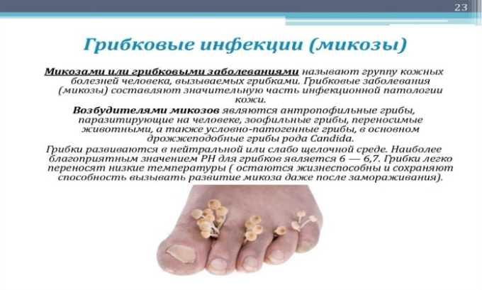 Инъекции и таблетки Гидрокортизона не назначают, если пациент страдает системными грибковыми заболеваниями