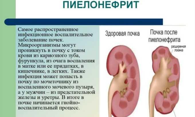 Препарат применяется при пиелонефрите