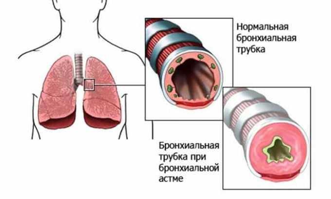 Если у пациента в анамнезе наблюдалась бронхиальная астма, то прием медикамента может привести к бронхоспазму