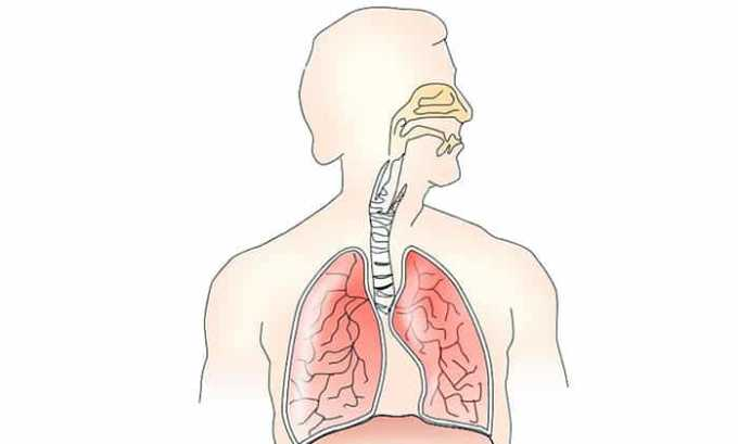 Лекарством Вольтарен 100 лечат тяжелые воспалительные процессы в верхних дыхательных путях и лор-органах (фарингит, ангина, гайморит)