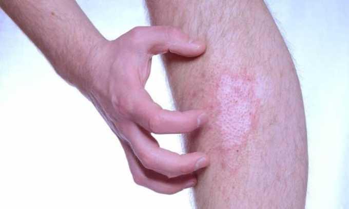Во время лечения у пациента могут развиться побочные реакции в виде зуда и крапивницы