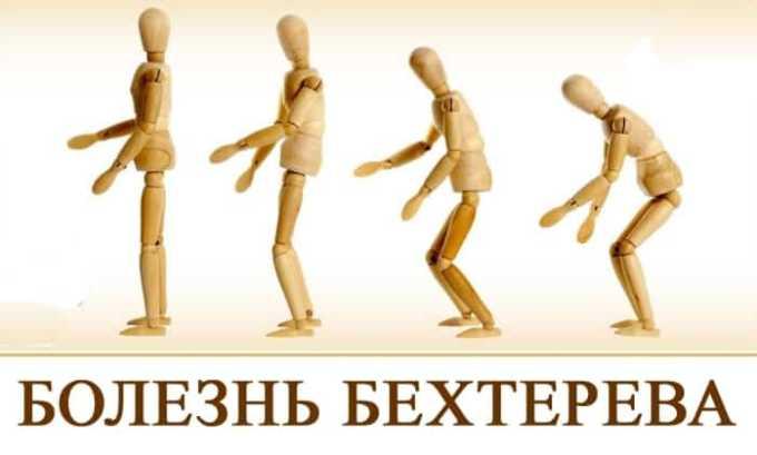 Противовоспалительное средство эффективно при болезни Бехтерева