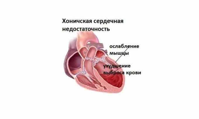 Применять средство для проведения терапии следует при хронической сердечной недостаточности