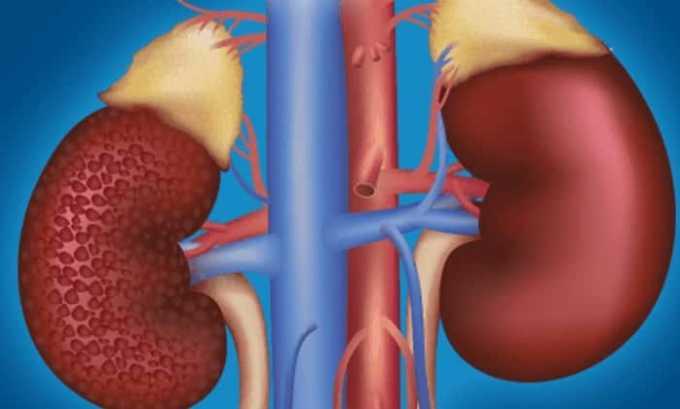 Так как аллопуринол выводится почками, при почечной недостаточности может наблюдаться замедление экскреции вещества