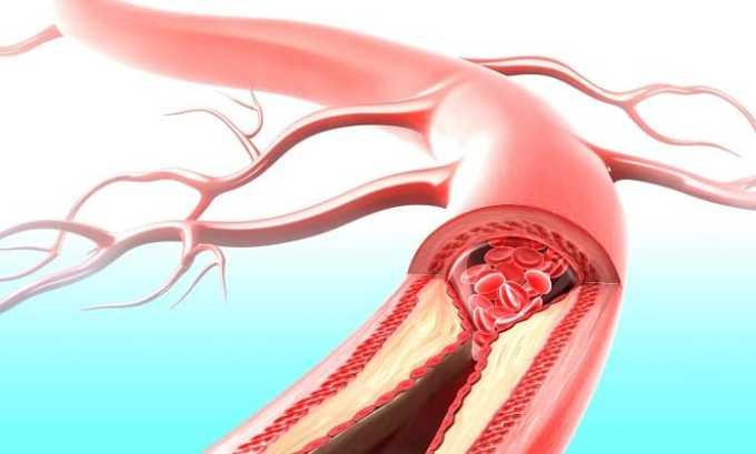 Препарат расширяет периферические вены