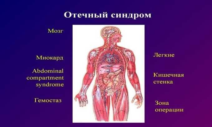 Средство выписывают при отечном синдроме, связанном с сердечной и печеночной недостаточностью