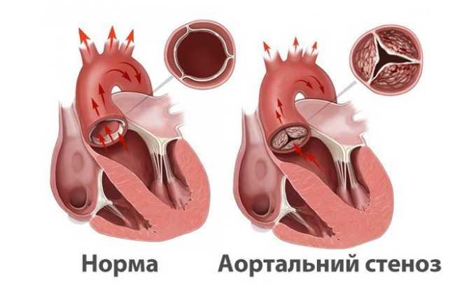 Запрещен прием при стенозе клапана аорты