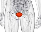 Взвесь в мочевом пузыре — виды, причины, симптомы и лечение