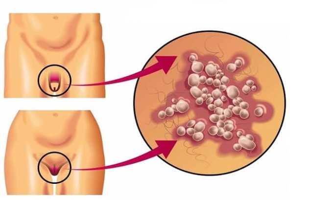 Инфекции половых органов лечат с помощью препарата Цефепим