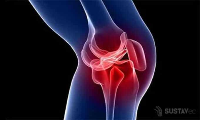 При артрите применяют суспензию Найз