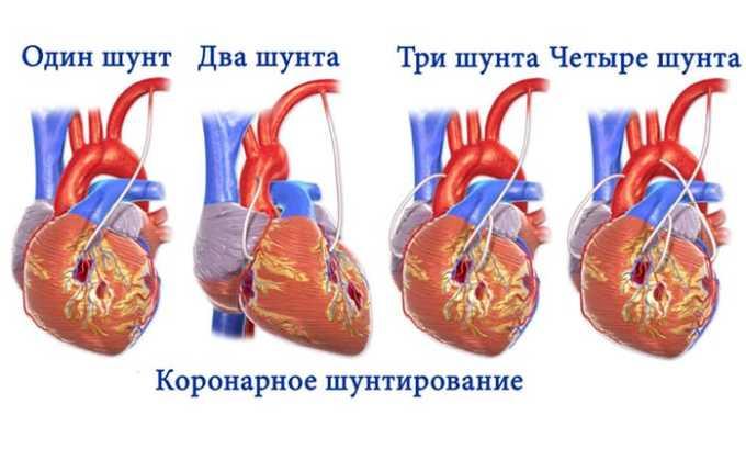 Не принимают медикамент после проведения процедуры аортокоронарного шунтирования