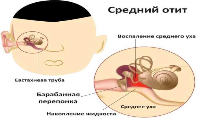 Препарат назначают при среднем отите