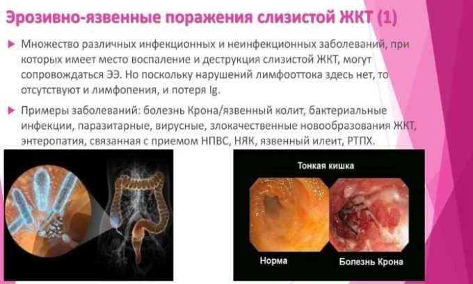 Препарат не применяется при эрозийно-язвенных болезнях ЖКТ