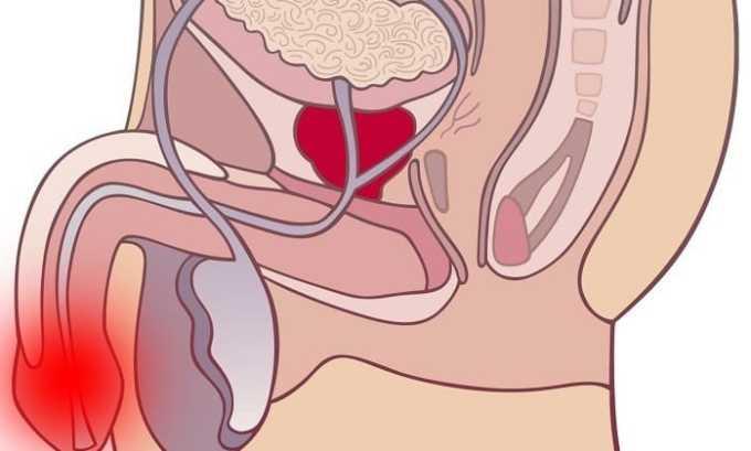 У мужчин воспалительный процесс нередко переходит на уретру