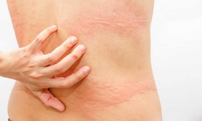 При приеме препарата может возникнуть побочный эффект в виде крапивницы