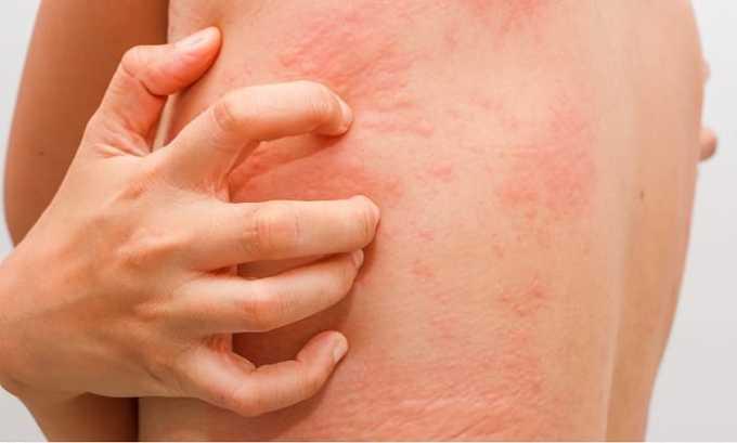 При приеме Аугментина может появиться аллергический васкулит