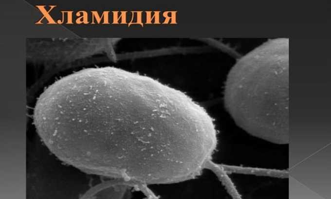 Макмирор назначают при наличии вагинальных заболеваний, вызванных хламидиями