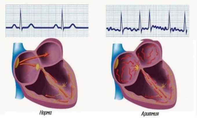 При передозировке возможно нарушение сердечного ритма