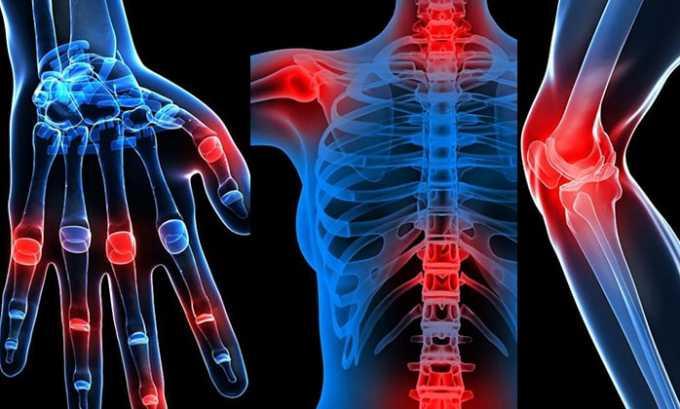 Препарат рекомендован при лечении патологии опорно-двигательного аппарата, воспаления суставов