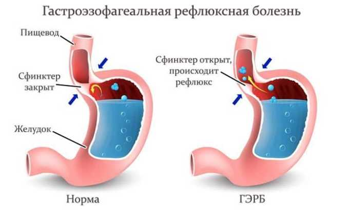 Развитие рефлюкса - одно из побочных действий тирозина