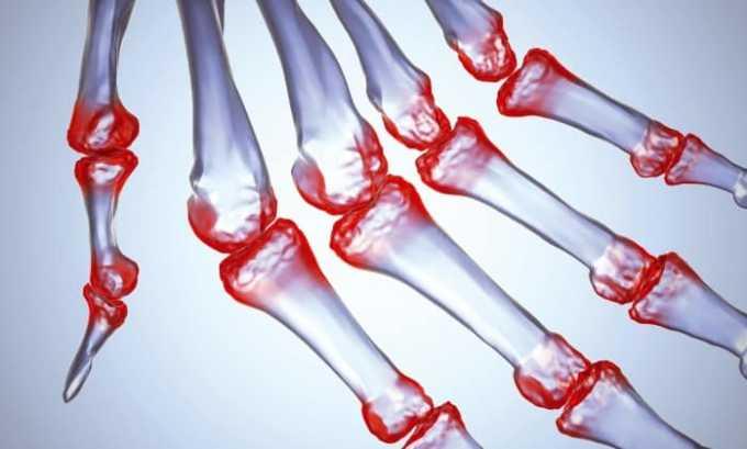 Димексид, Новокаин и Гидрокортизон способствует устранению артрита