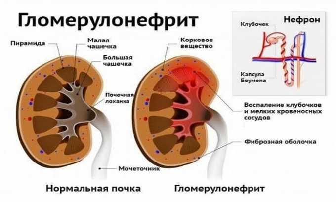 Лекарственное средство используется при гломерулонефрите
