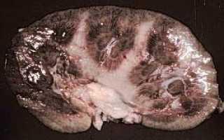 Хронический гломерулонефрит — симптомы и лечение болезни разной формы