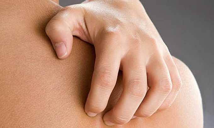 Терапевтический курс может спровоцировать развитие кожного зуда