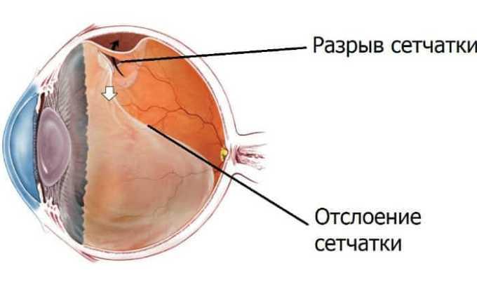 После введения импланта редко возникает разрыв сетчатки глаза