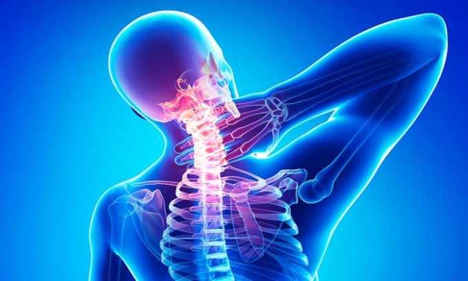 При остеохондрозе лекарство назначают для купирования болевого синдрома