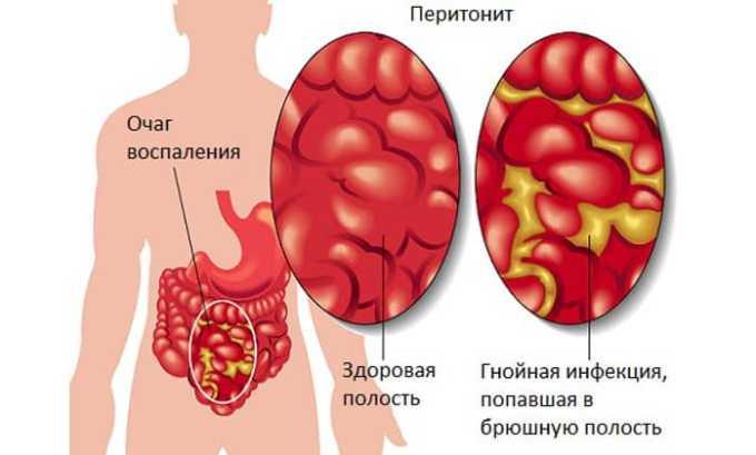 Лекарство может быть назначено при перитоните