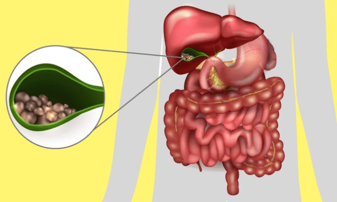 Препарат применяется для лечения холецистита
